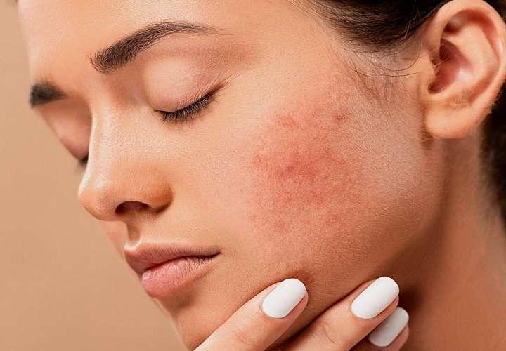 ¿Sabe usted si el maquillaje le causa alguna reacción alérgica?