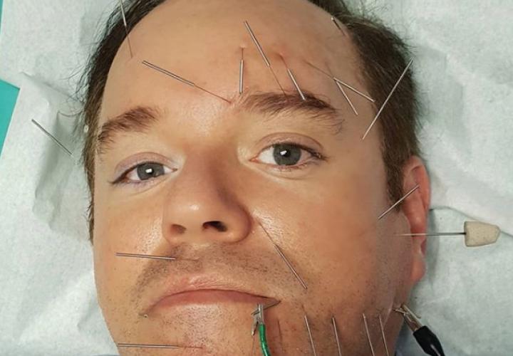 Alex Medela prueba acupuntura para su parálisis facial