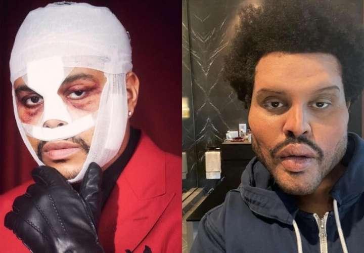 The Weeknd reaparece y asusta a sus fans con su nuevo aspecto
