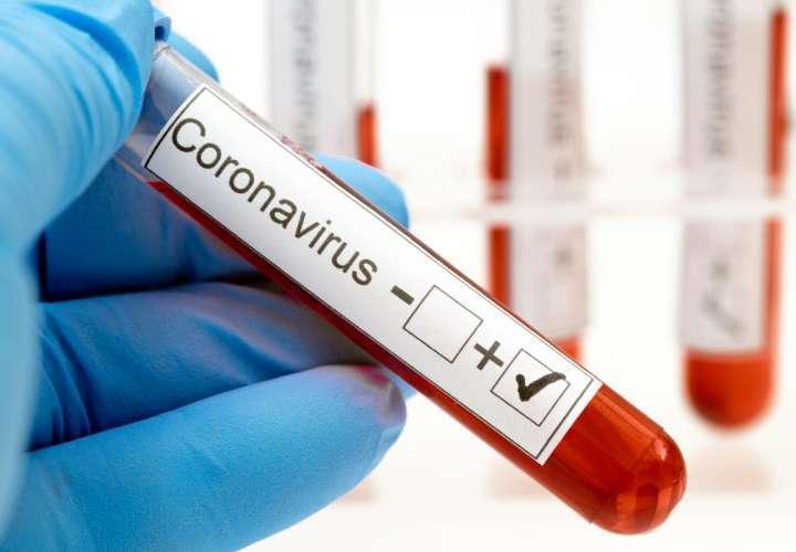Aumentan casos positivos de Covid-19 y fallecidos