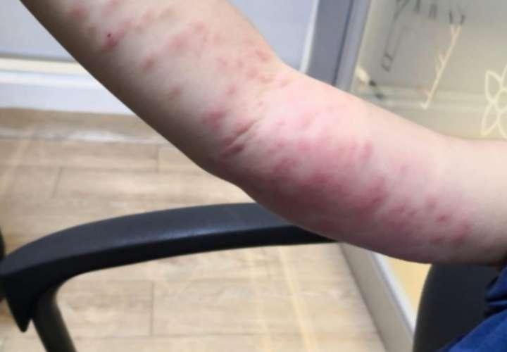 Chiriquí en alerta por afectaciones en la piel por pelusa de mariposa