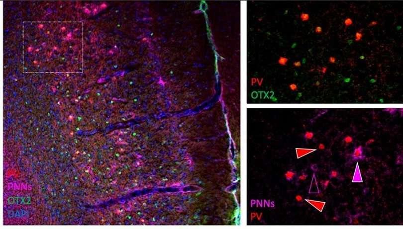 """En la imagen, la proteína """"OTX2"""" en verde internalizándose en las neuronas (rojo) de la corteza prefrontal que están rodeadas de redes perineuronales (rosa). Imagen: Universidad Autónoma de Madrid. EFE"""