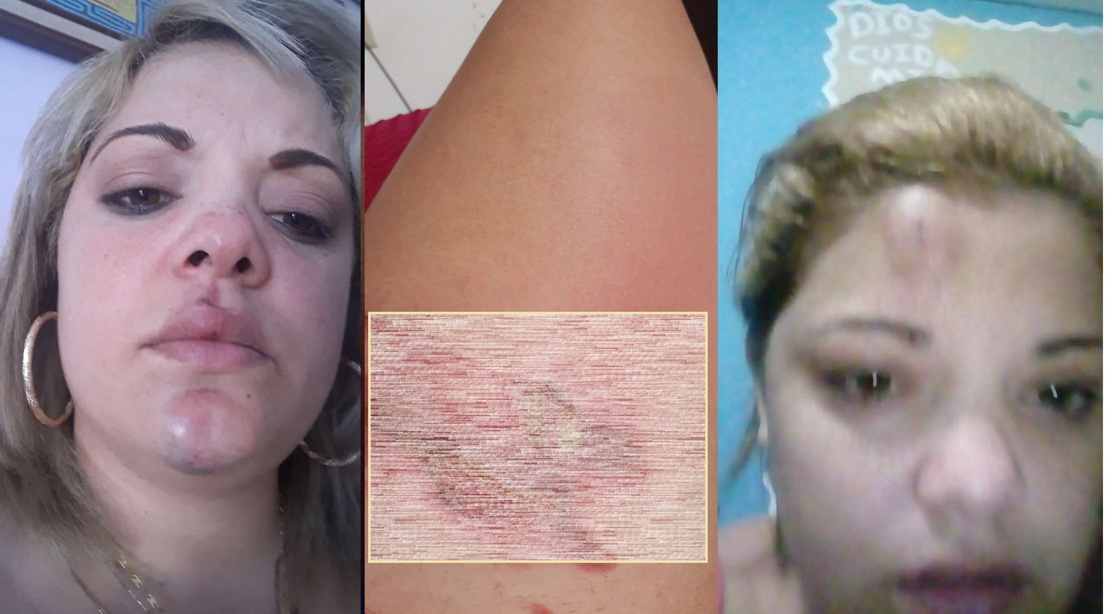 La pareja del funcionario proporcionó fotos de las marcas de las agresiones.  Dijo que su pareja le arrojó agua caliente en su pierna.